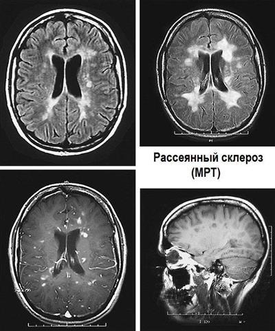 рассеянный склероз на МРТ