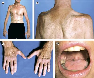Симптомы с атрофией мышц