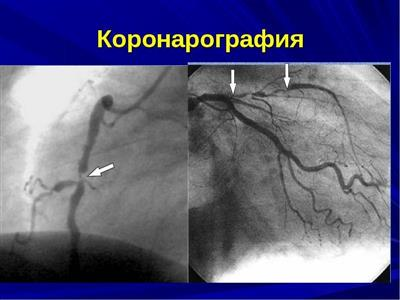 Диагностика атеросклероза сосудов как проводится и выявляется заболевание
