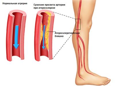 Атеросклероз сосудов ног - симптомы и лечение, препараты