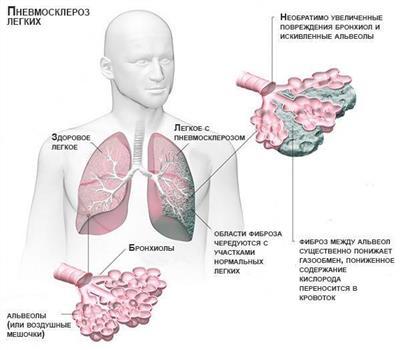 Склероз легких симптомы и лечение