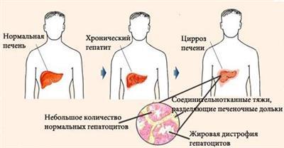 алкогольный цирроз в сравнении со здоровой печенью