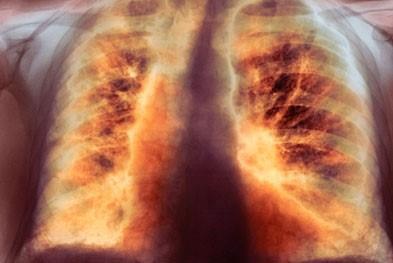 легкие с пневмосклерозом