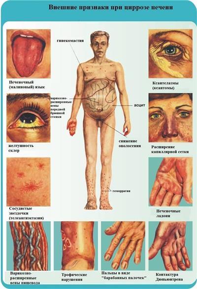 Внешние симптомы цирроза