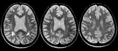 Участки демиелинизации в головном мозге на МРТ снимке