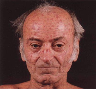 Бляшечная склеродермия стадии