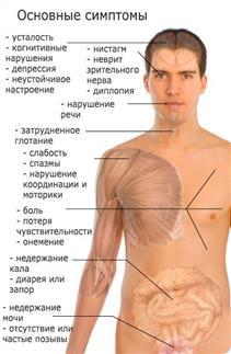 основные симптомы РС