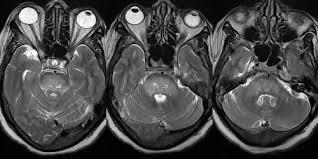 Церебральный атеросклероз и через какое время смерть
